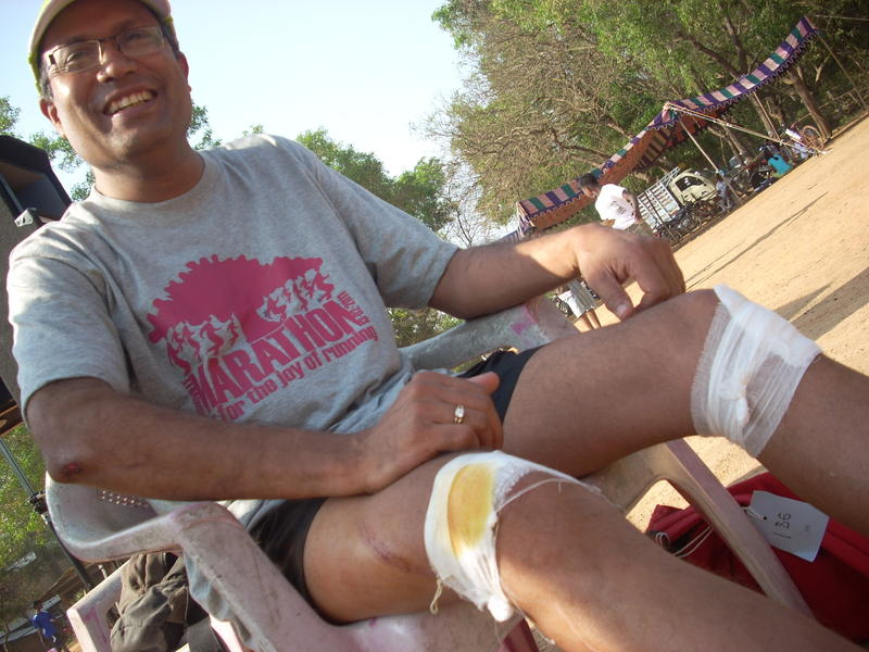 Photographer:Andrea | Scratching the doctors had treated. Not major injures happen said Dr. Ashok from PIMS.