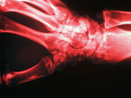 Photographer:web | bone density test