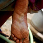 Diseases, like this skin illness, are getting a big problem